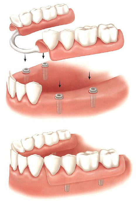 Removable Partial Dentures skye Dental Services