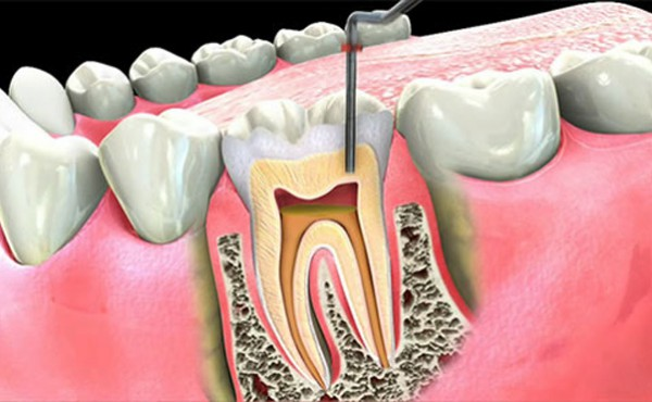 root canal treatment skye Dental Services