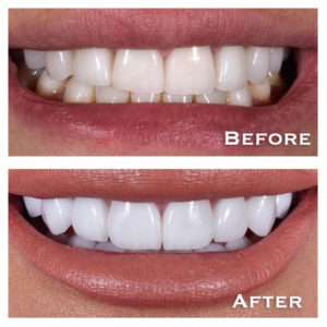 veneers skye Dental Services